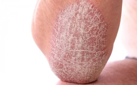 Psoriasis - causes et options de traitement